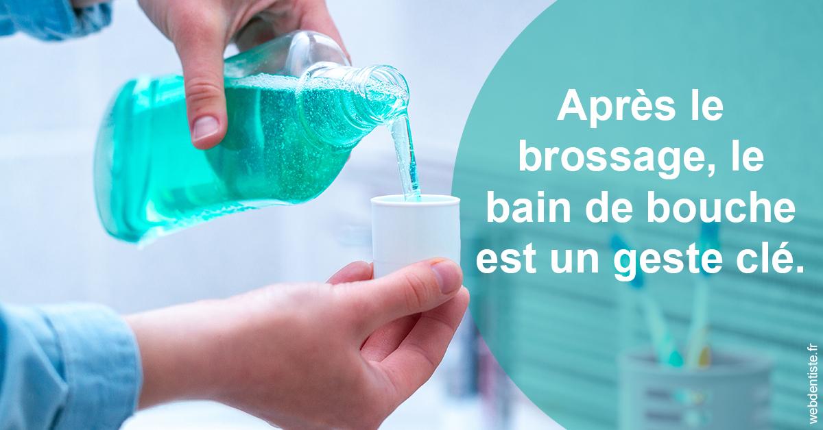 https://www.cabinet-dentaire-hollender-raybaut.fr/Bains de bouche 2